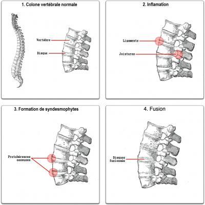 Evolution de la spondylarthrite ankylosante