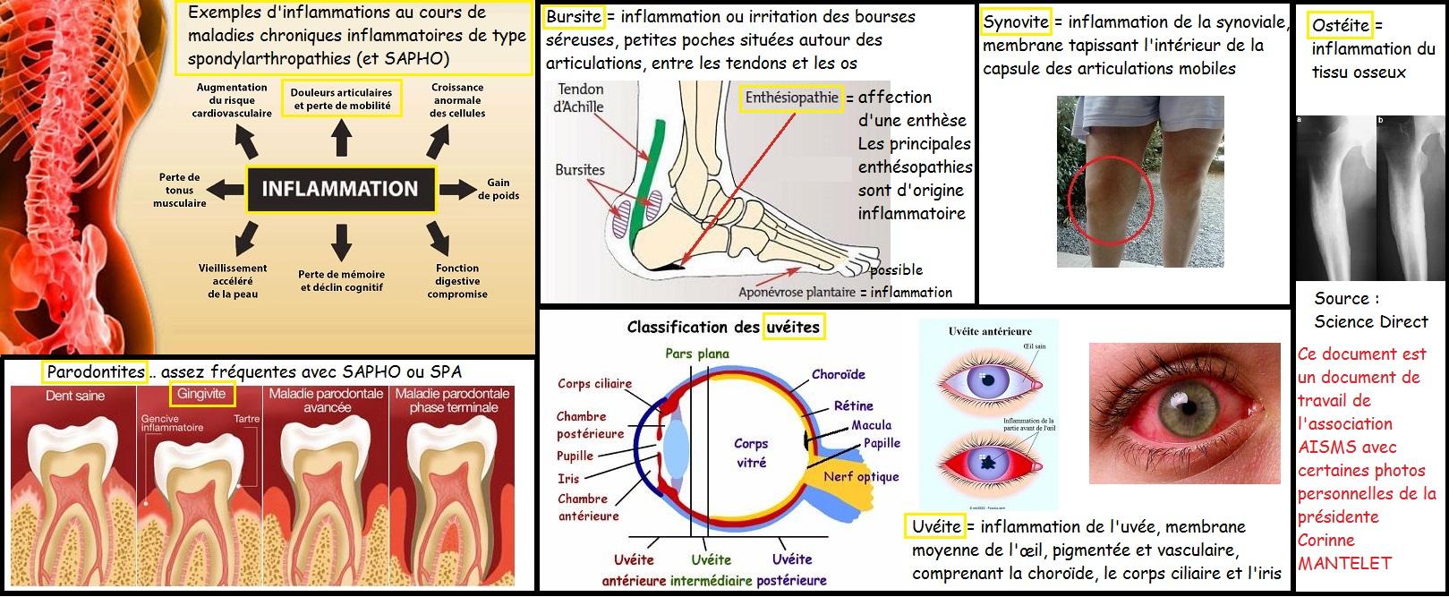 Mangermediterraneen 7 facon combattre inflammation